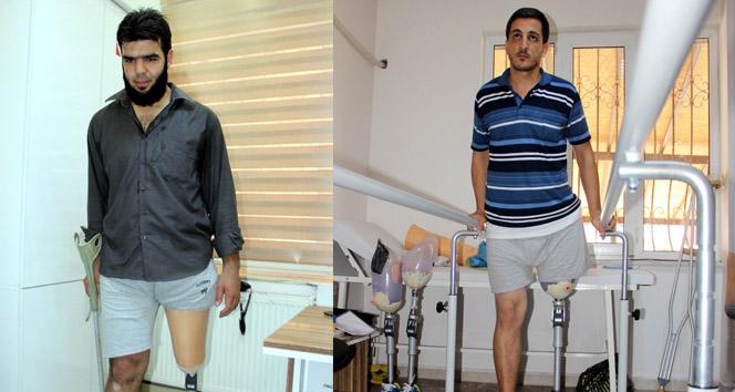 Suriye'deki savaşta kolunu ve bacağını kaybedenlere ücretsiz tedavi
