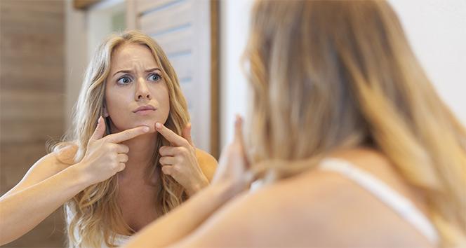 Sivilce izlerimden nasıl kurtulurum? Sivilce izleri tedavisi nasıl olur?