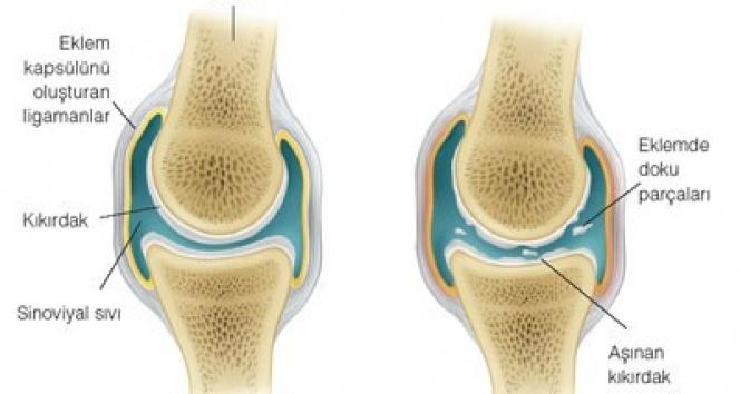 Osteoartrit (Kireçlenme), yaşam kalitenizi düşürmesin