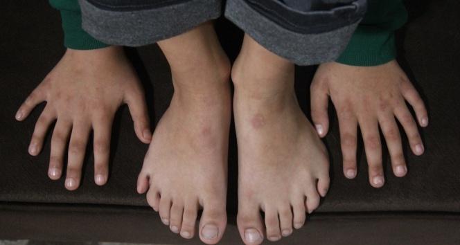 24 parmaklı çocuğun ayakkabı çilesi