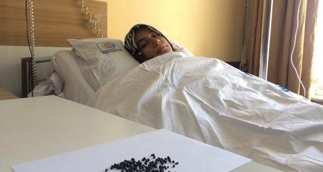 Genç kadının safra kesesinden 200 tane taş çıktı