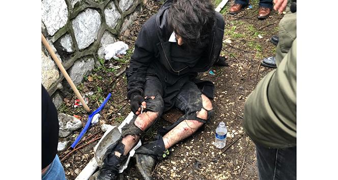 Üniversite öğrencisi köpek saldırısıyla yaralandı