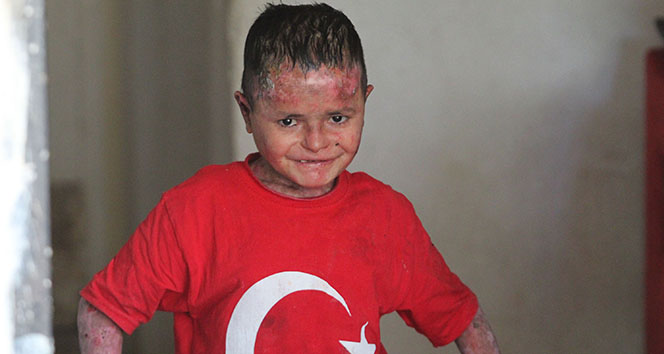 Suriyeli 'kelebek' hastası Aladdin'in Türkiye aşkı