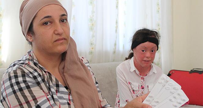 Balık pulu hastası Medine, dört gözle beklediği ilacı gördü, isyan etti