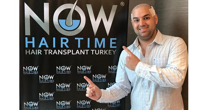 Now Hair Time: Dünyada saç ekiminin yeni merkezi Türkiye!