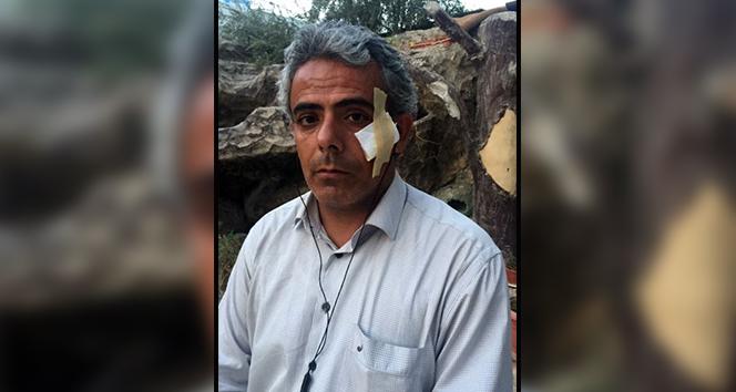 İHA muhabiri yaralandığı roketli saldırıyı anlattı