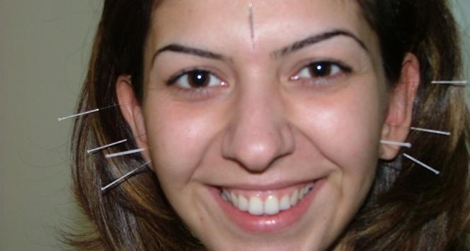 Şeker hastalarına akupunktur desteği