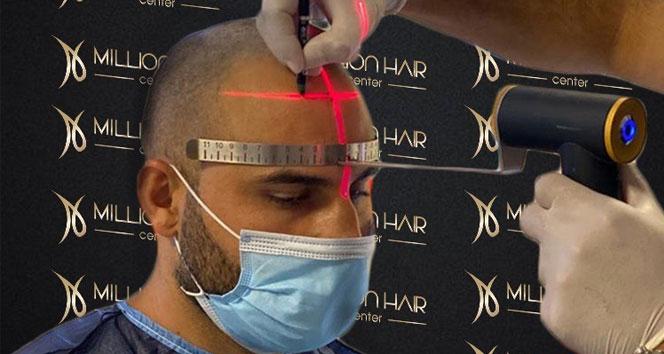 Million Hair Center CEO' su Fatih Köse: 'Saç ekiminin en önemli noktaları ön saç çizgisi ve doğal görünümdür'