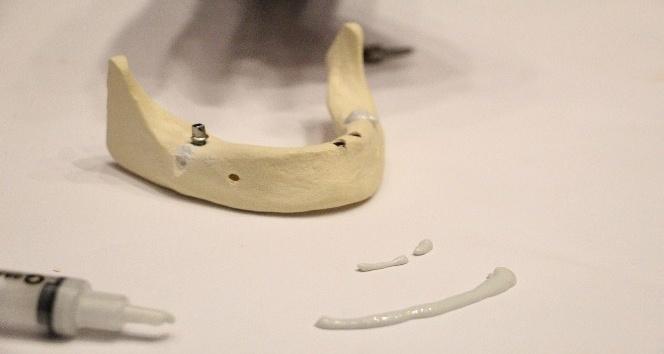 Kırık kemiklere sentetik kemik dolgusu ile 10 dakikada tedavi imkanı