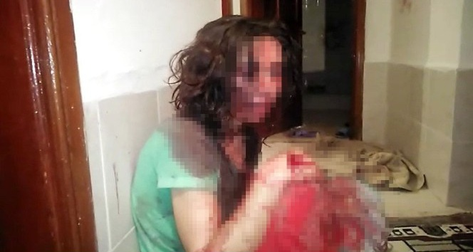 Kocasından öldüresiye dayak yiyen kadını polis kurtardı