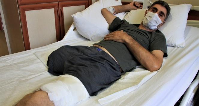 Ölümden döndü, tek bacağını kaybetti şimdi protez bacak bekliyor
