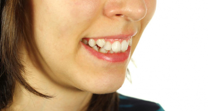 Ağızdan nefes almak, diş yapısını bozabilir
