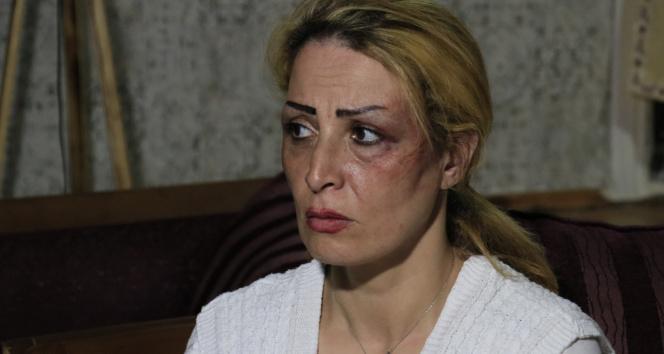 İran uyruklu karısını darp eden şahıs tutuklandı