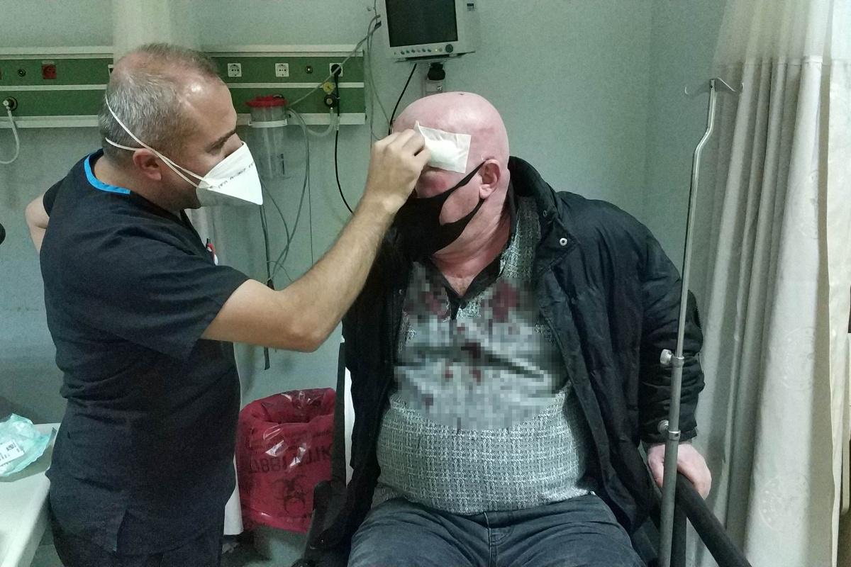 Davul tokmağıyla zurnacıyı hastanelik edip 10 bin lirasını gasp ettiler