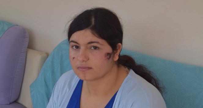İzmirde kocası tarafından darp edilen kadın dehşet anlarını anlattı